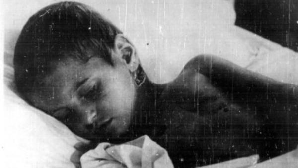 Јадовно: Заборављени геноцид (ФОТО)