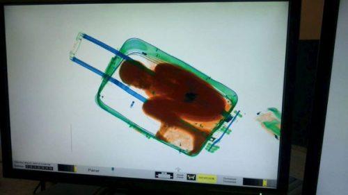 Мигрант из Еритреје у торби