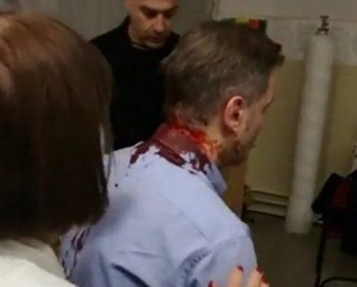 БОРКО СТЕФАНОВИЋ НАПАДНУТ У КРУШЕВЦУ Мушкарци са капуљачама га ударали дрвеним штанглама, раскрвављене главе пребачен у болницу