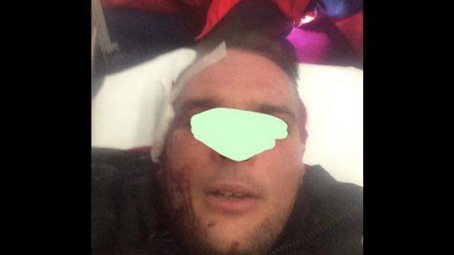 Србин на Крку прво рањен, па кажњен?!