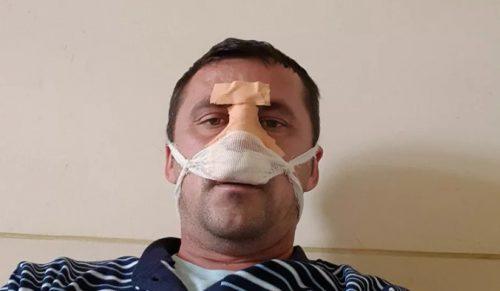 СТРАХ У ВЕЛИКОЈ ХОЧИ: Србин коме су Албанци поломили нос описује детаљно драму кроз коју је прошао
